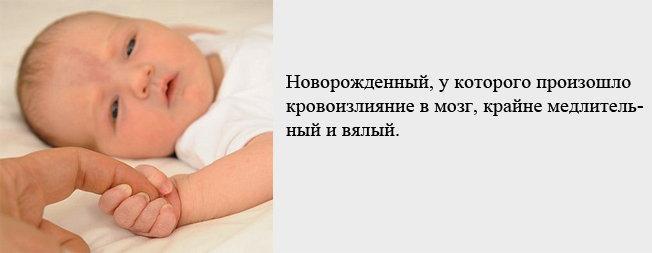 внутричерепное кровоизлияние новорожденных лечение МКАД Минскому