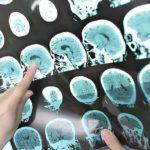 Признаки рассеянного склероза у женщин