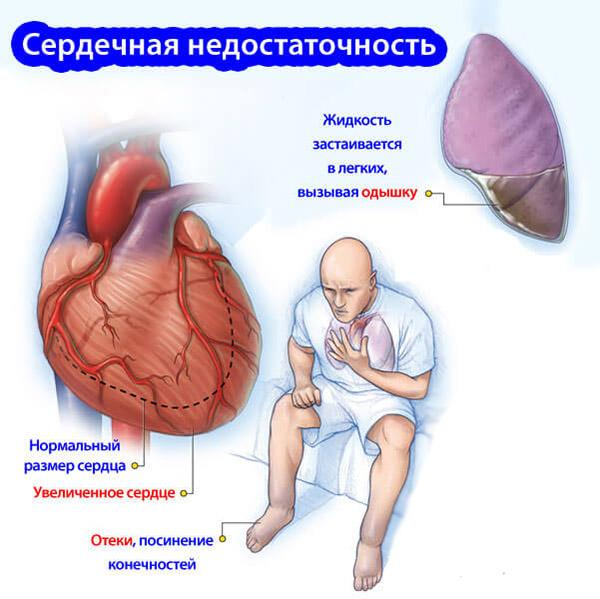 Признаки сердечной недостаточности у мужчин после 60 лет
