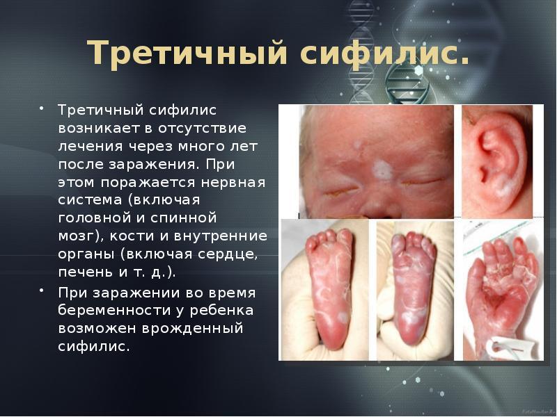 Признаки третичного сифилиса