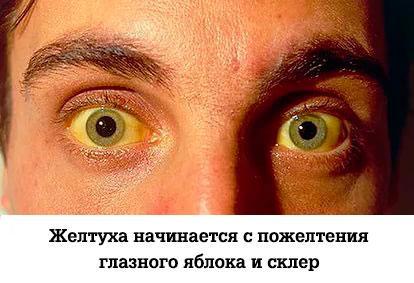 Проявление желтухи на глазных склерах