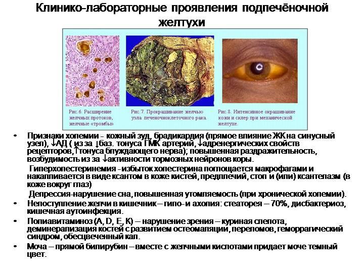Проявления подпеченочной желтухи