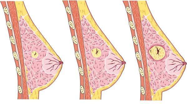 Развитие мастопатии