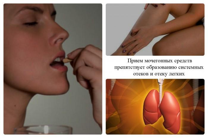 Роль диуретиков
