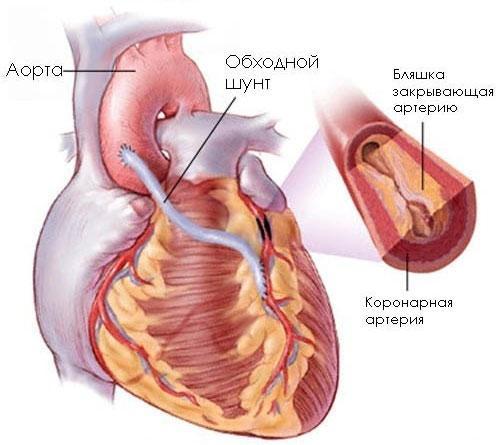 Сердце при кардиосклерозе