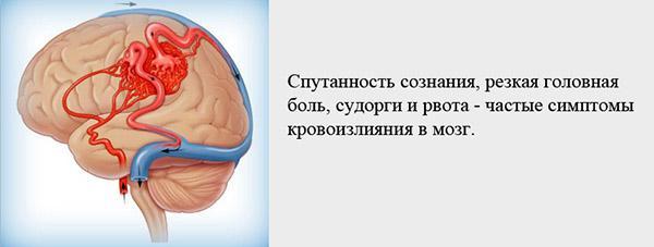 Симптомы кровоизлияния в мозг