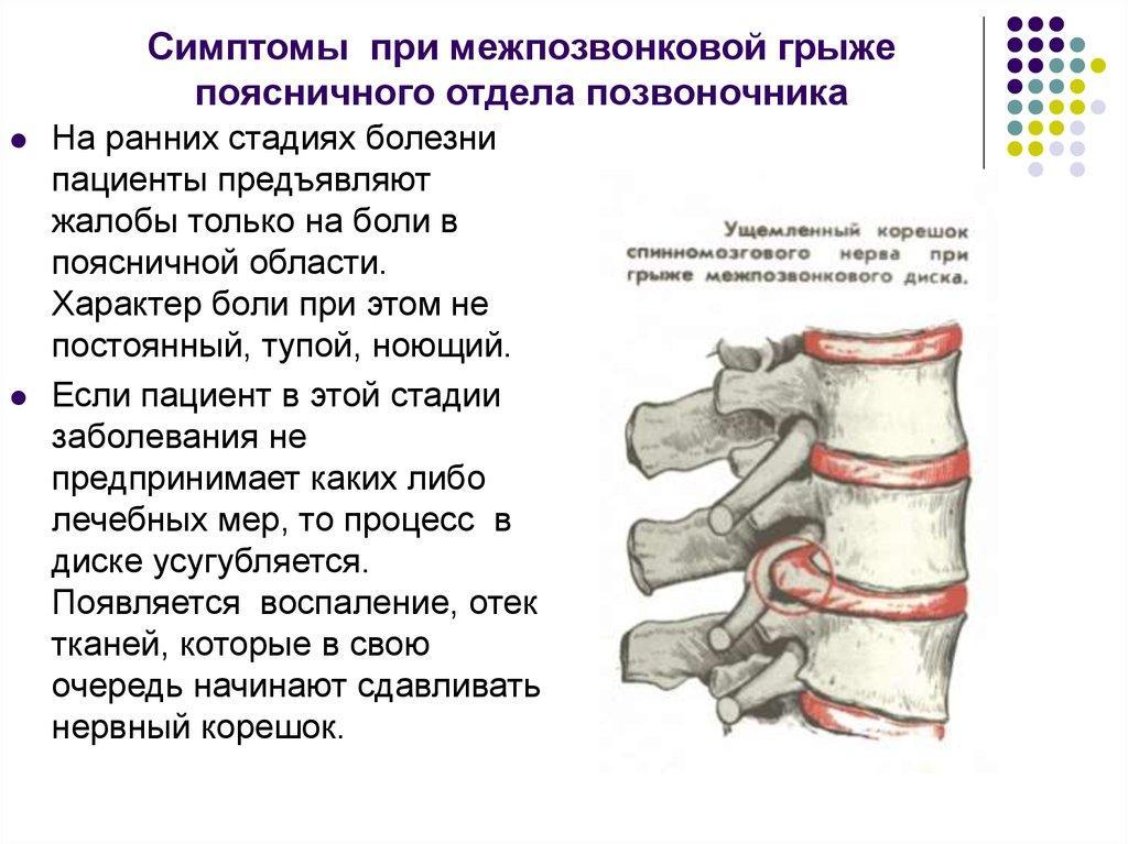 Симптомы межпозвонковой грыжи поясничного отдела
