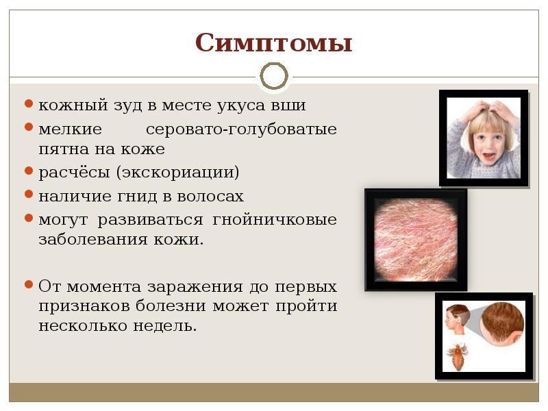 Симптомы наличия вшей