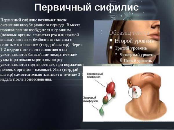 Симптомы первичного сифилиса