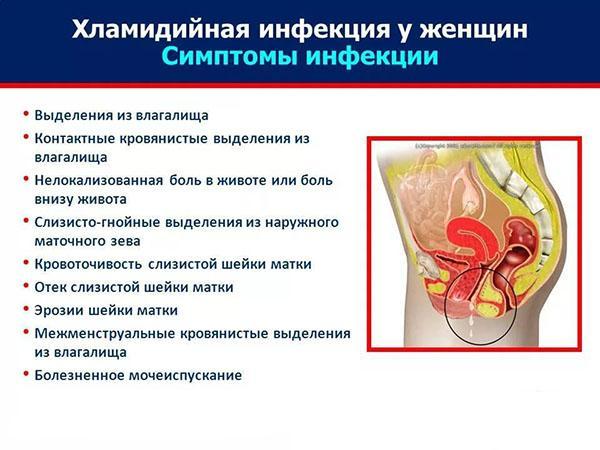 Симптомы хламидийной инфекции у женщин