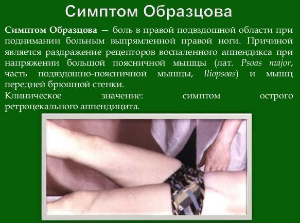 Симптом Образцова при аппендиците