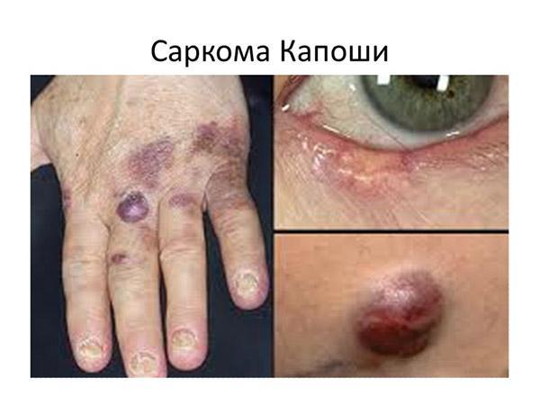 Синдром Капоши