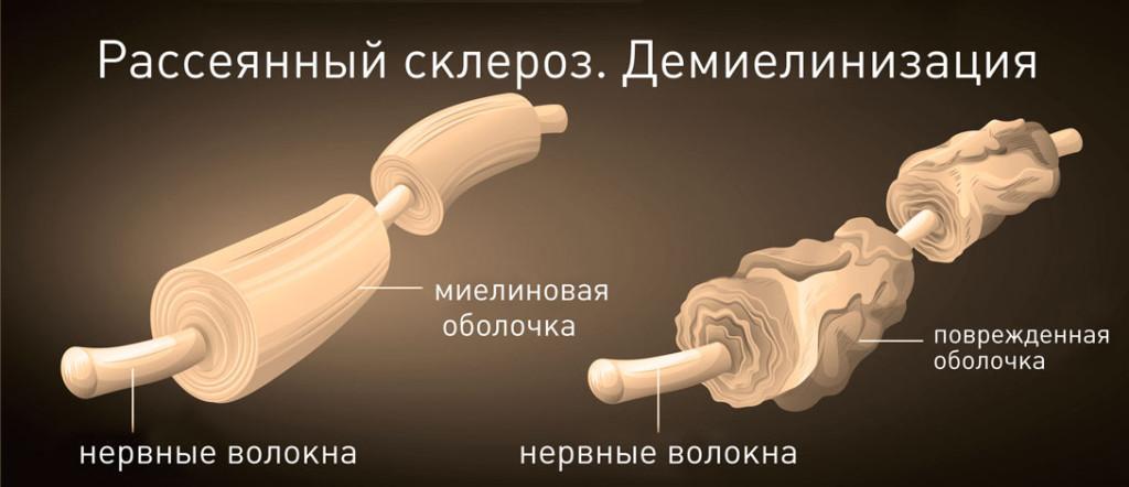 Сравнение нервных волокон здорового человека и человека с рассеянным склерозом
