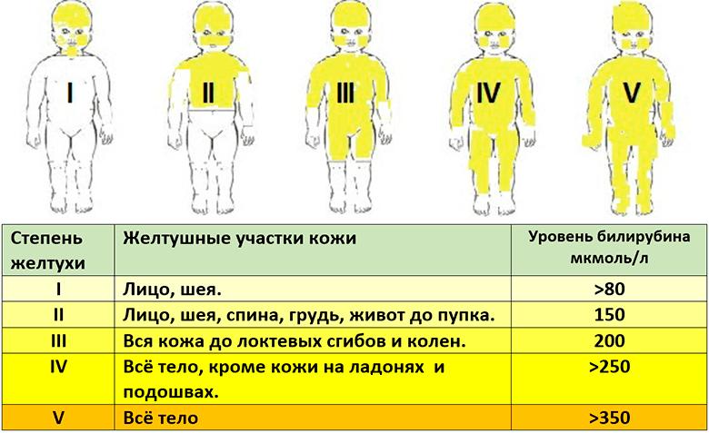 желтуха фото новорожденных