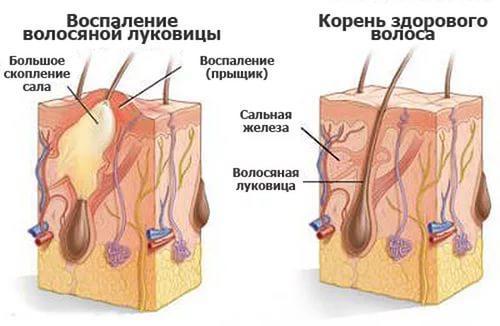 Схематичное изображение воспаления волосяной луковицы