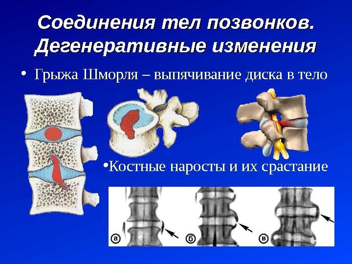 Схематичное изображение грыжи Шморля