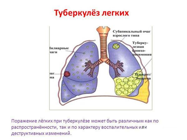 Схематичное изображение туберкулеза
