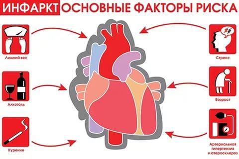 Факторы риска инфаркта миокарда