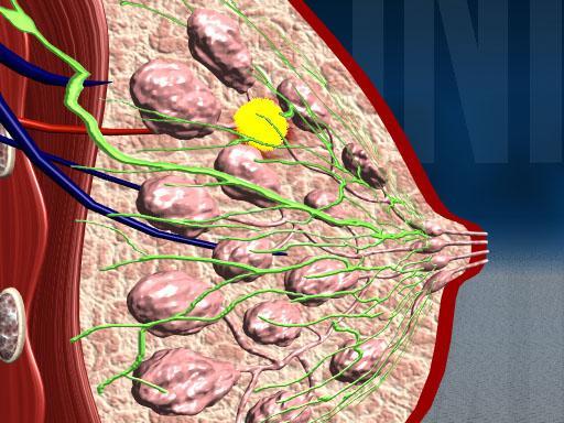 Маммография фиброзно-кистозная мастопатия