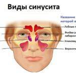 Чем лечить синусит у взрослых?