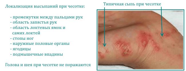 Чесотка как причина зуда кожи у человека