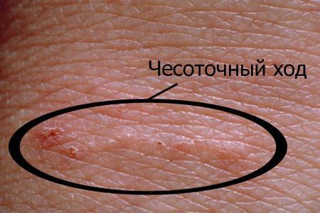 Чесоточный ход на коже человека