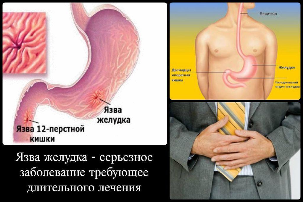 Язва желудка препилорического отдела желудка