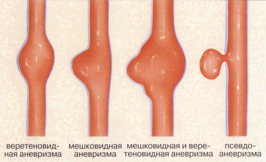 Виды аневризма брюшной аорты
