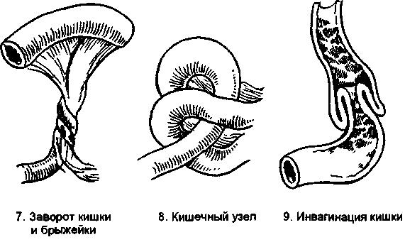 Виды заворота кишок