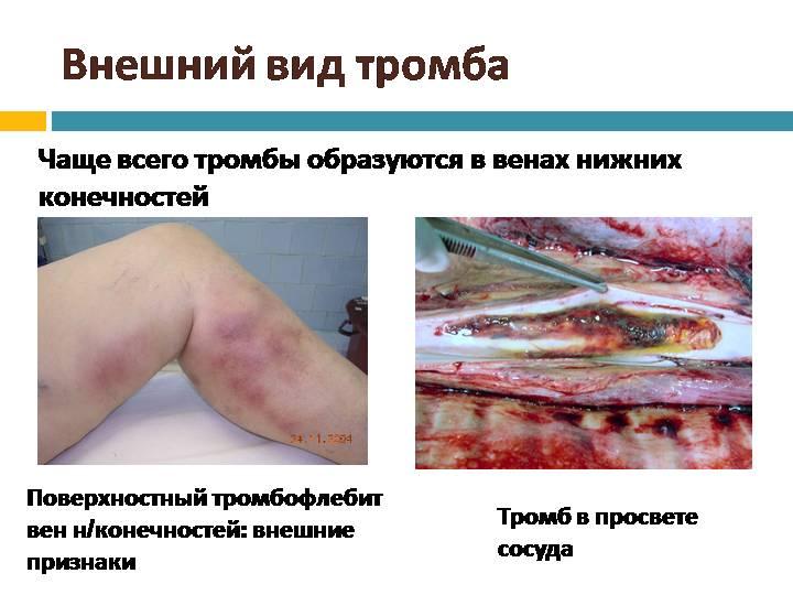 Внешний вид тромба