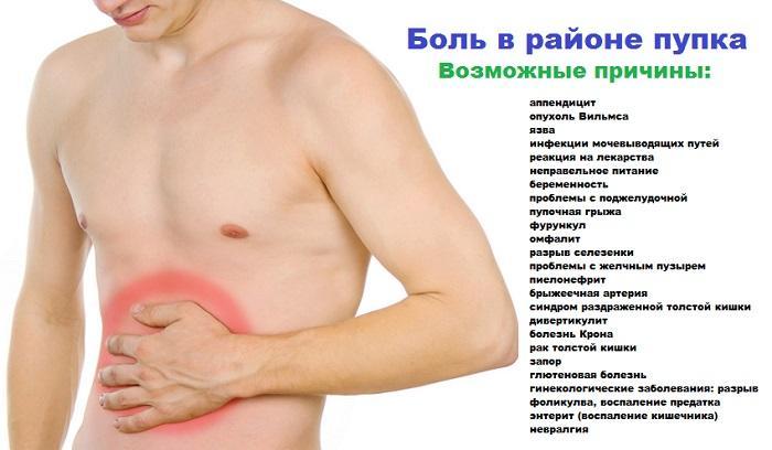 Возможные причины болей в области пупка