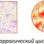 Геморрагический цистит у женщин