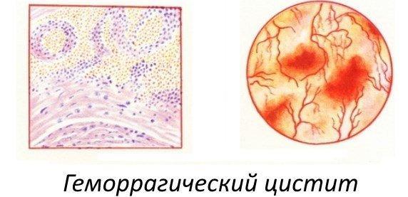 Геморрагический цистит у женщин - признаки, причины, лечение