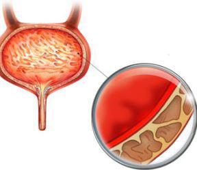 Острый геморрагический цистит симптомы и методы терапии