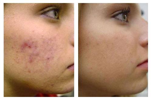 До и после применения Зинерита
