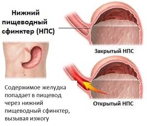 Желудочно-пищеводный рефлюкс