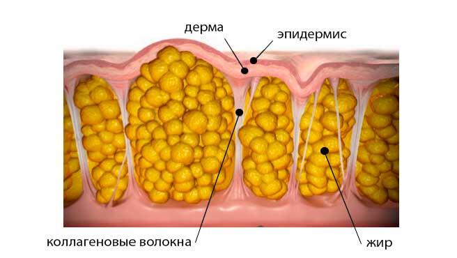 Жировые отложения при целюлите