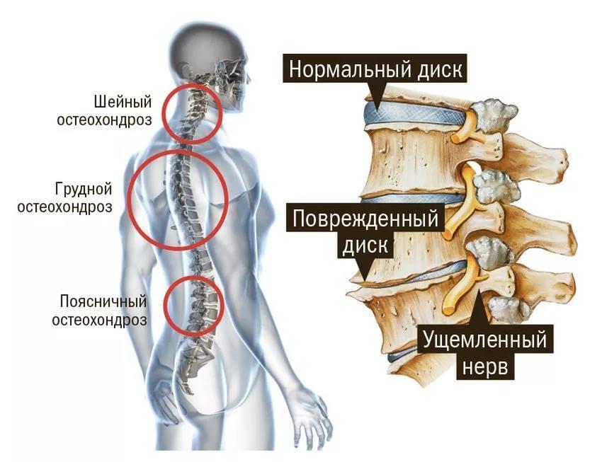 Как выглядит остеохондроз