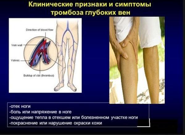 Клинические признаки тромбоза глубоких вен