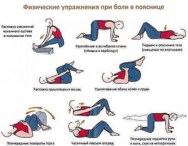 Комплекс физических упражнений при болях в пояснице