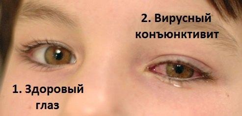 Конъюнктивит вирусный: симптомы и лечение