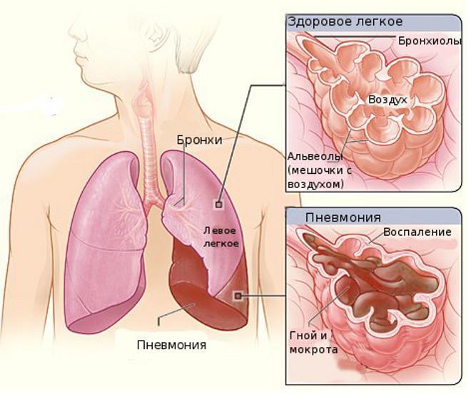 Легкое при пневмонии