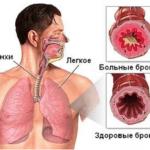 Лечение бронхита у взрослых: препараты