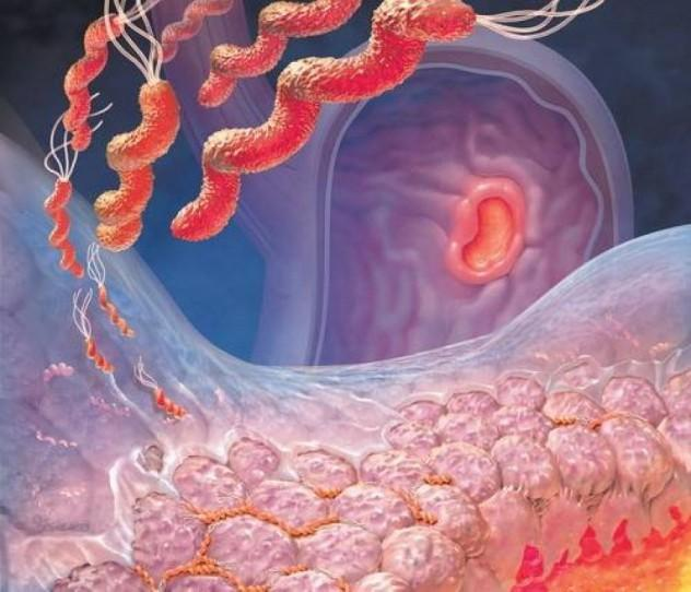 Гастрит желудка: симптомы и лечение