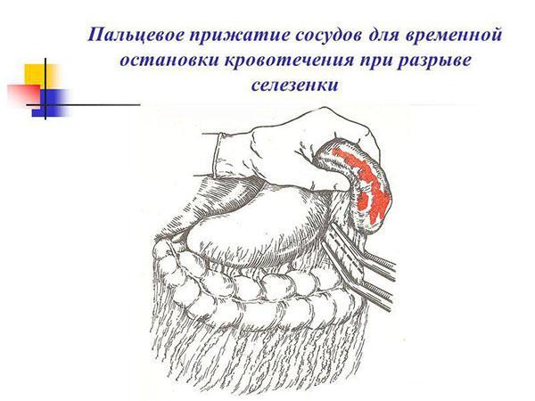 Остановка кровотечения при разрыве селезенки