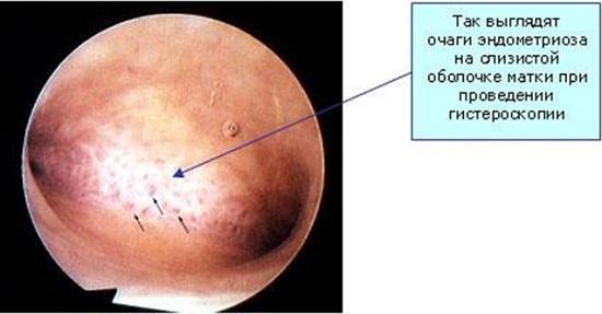 Очаги эндометриоза на слизистой оболочке матки