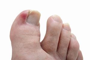 Как вылечить палец на ноге от воспаления thumbnail