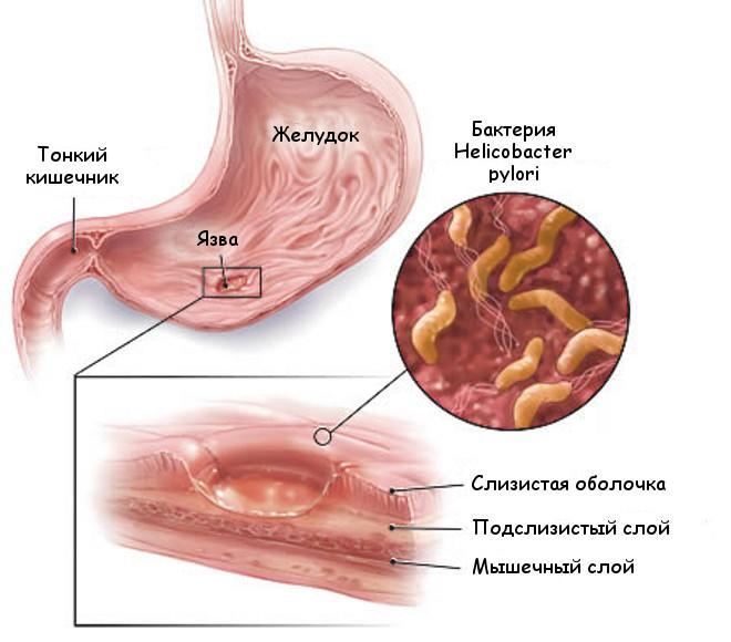 Поражение слизистой желудка бактериями Helicobacter pylori