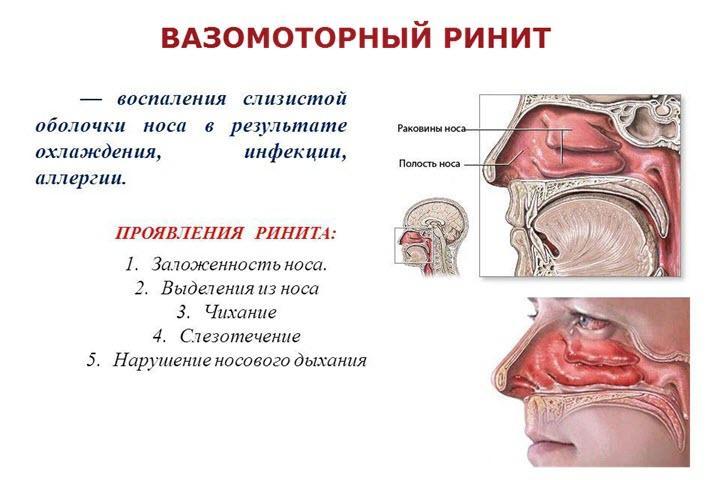 Признаки вазомоторного ринита
