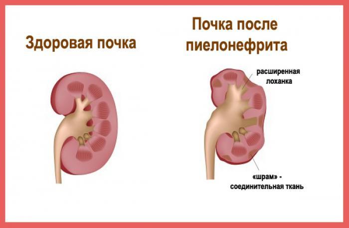 Признаки пиелонефрита у женщин